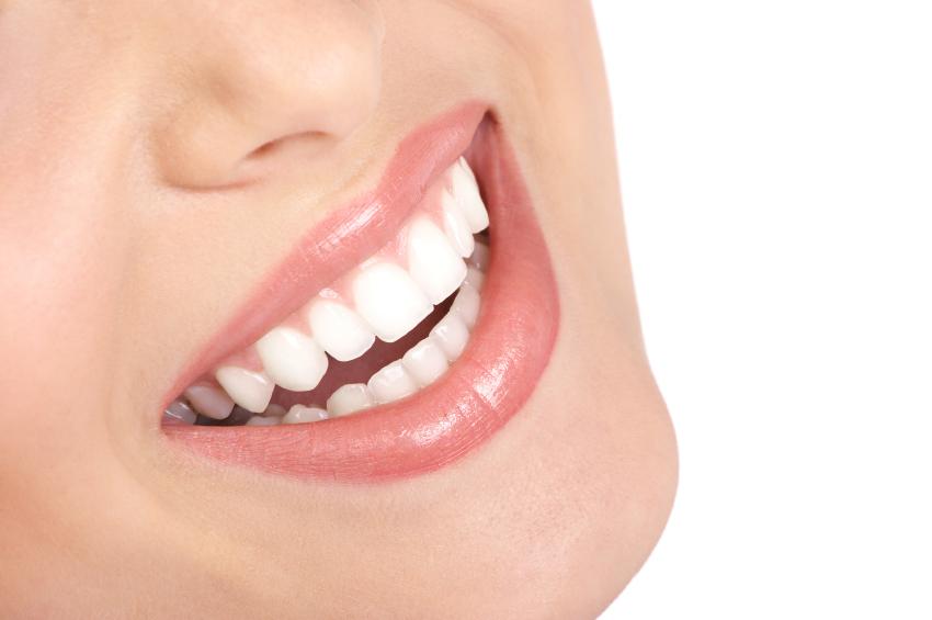 dental veneers reseda